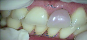 tooth ready to undergo internal bleaching at Malvern Endodontics