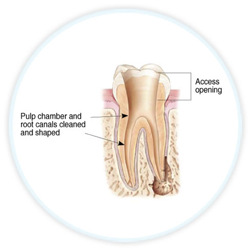 endodontic diagram showing open canals