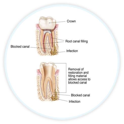 endodontic diagram showing retreatment