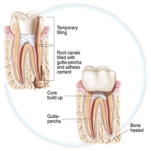 endodontic diagram showing temporary crown