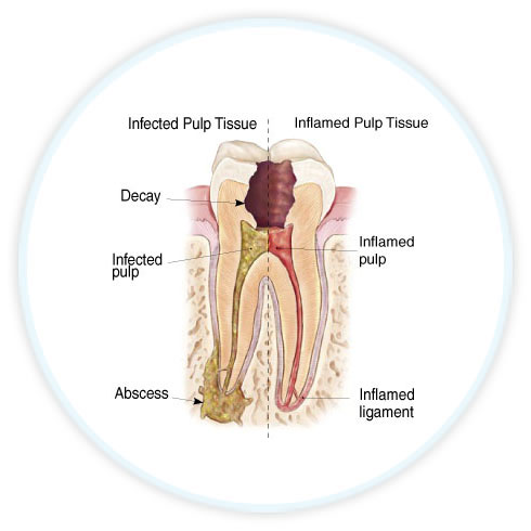 endodontic diagram showing infected tooth
